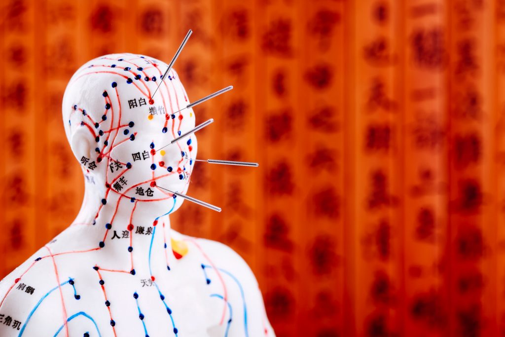 acupuncture manikin with needles
